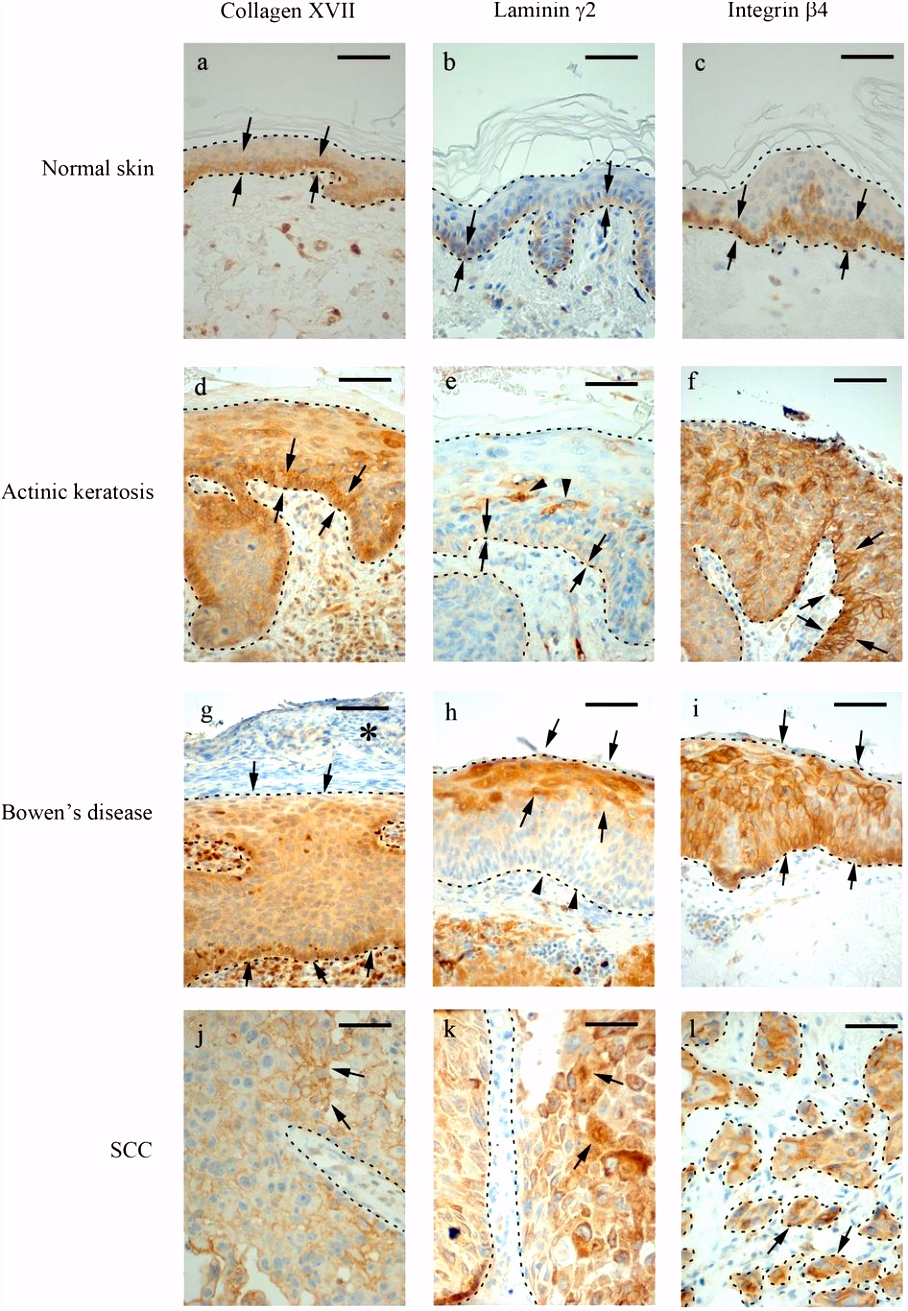 Significant Role of Collagen XVII And Integrin β4 in Migration and