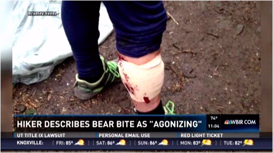 Appalachian Trail hiker describes agonizing bear