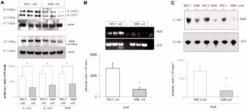 Human Antigen R HuR Expression in Hypertension