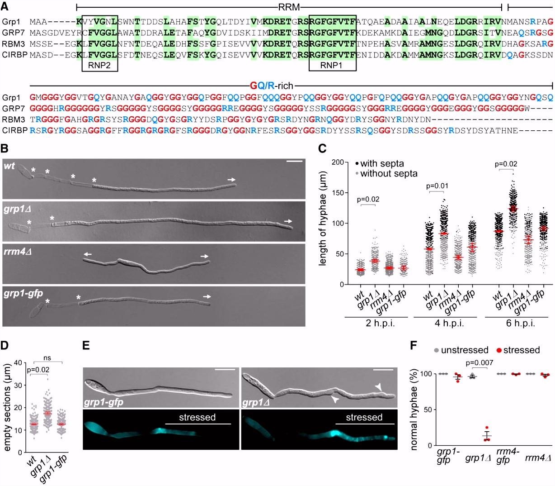 The key protein of endosomal mRNP transport Rrm4 binds translational