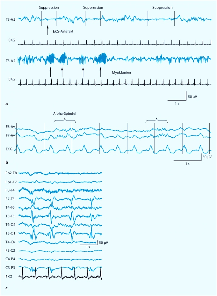 Neurophysiologische Diagnostik