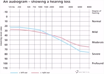Audiogram – What is an audiogram and how to read it