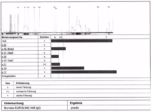 Das r o Special Borreliose und Pseudo Borreliose Teil 2 Diagnose